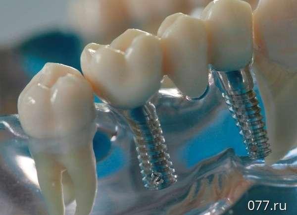 Что такое протезирование здорового зуба